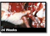 24 Weeks 2